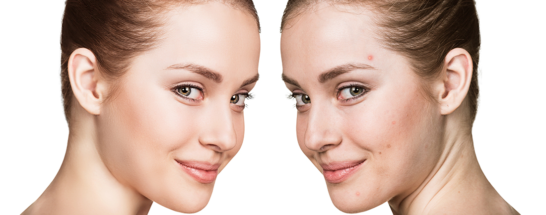 Before & After Photos of Acne Laser Treatment at Complexions Spa in Saratoga & Albany NY