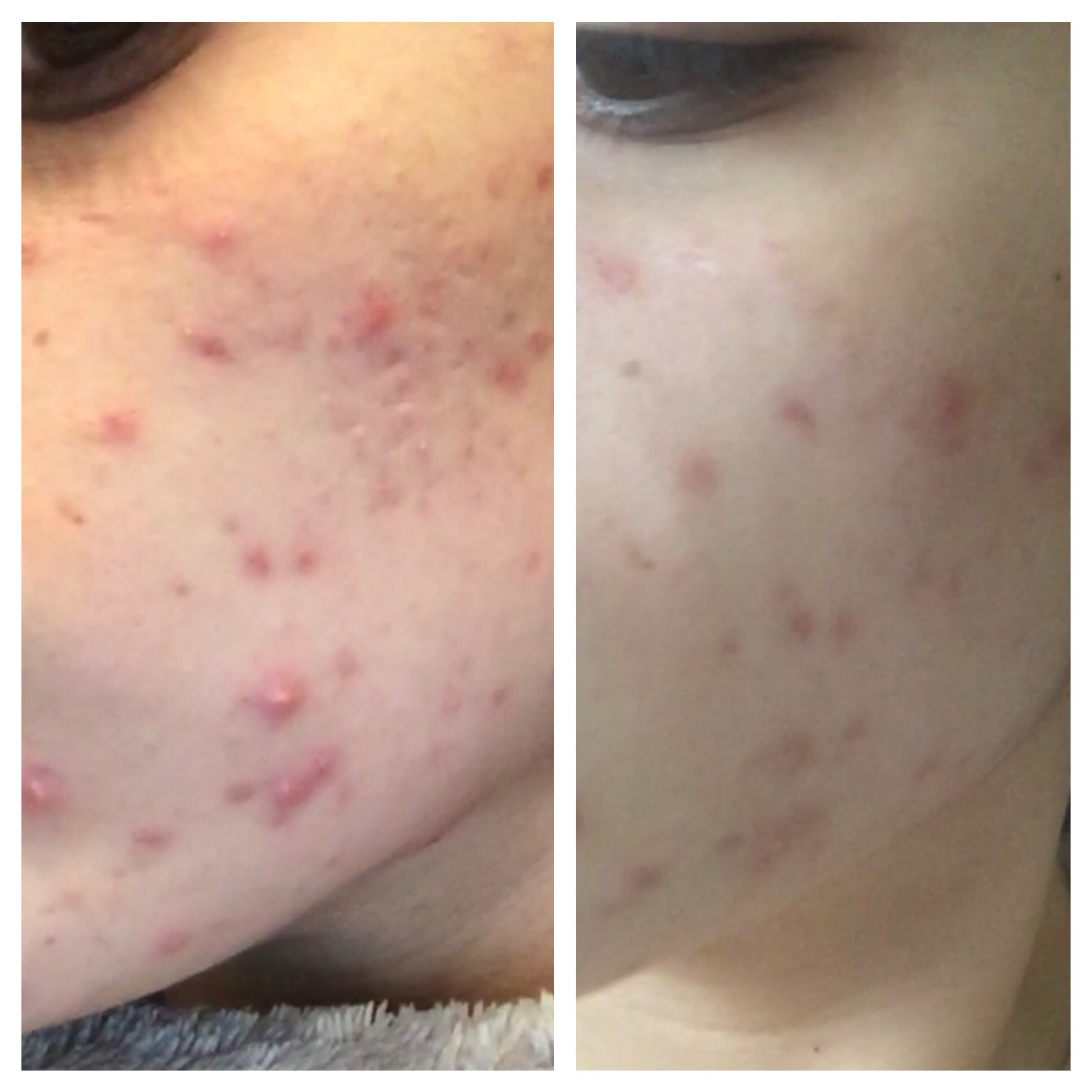 Chemical Peel - Before and After - Complexions Spa