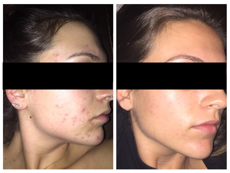 Chemical Face Peel - Before and After - Complexions Spa