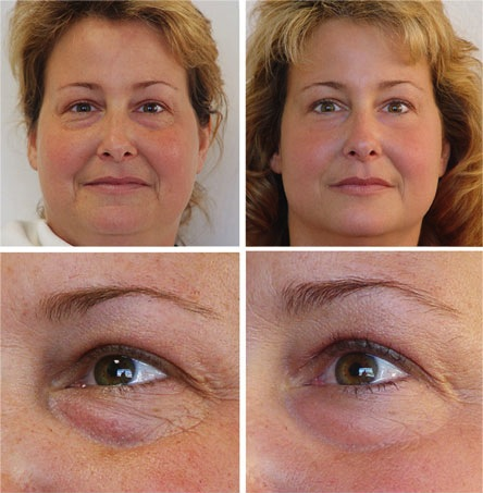 Microcurrent Facial Treatment - Before and After Photos - Complexions Spa