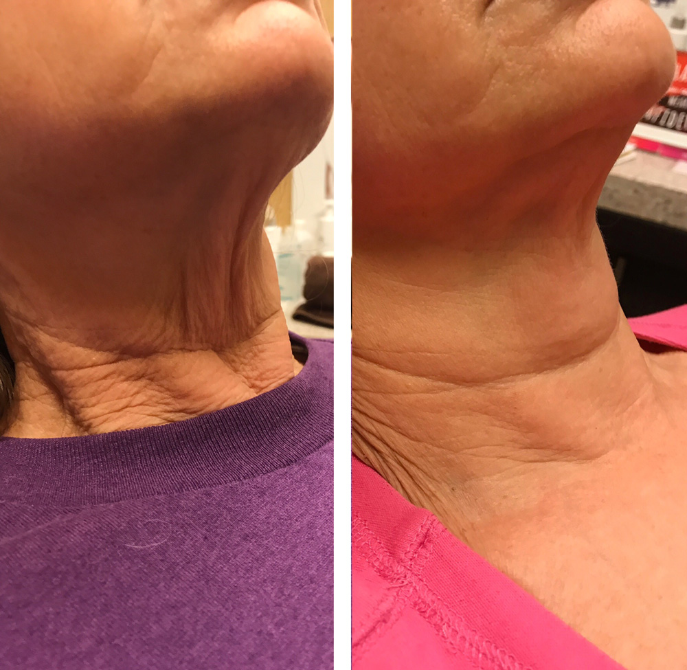 Before & After Photos of a Skin Tightening Treatment at Complexions Med Spa in Albany & Saratoga NY