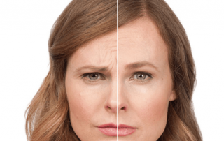 Botox and Facial Fillers - Saratoga NY and Albany Ny
