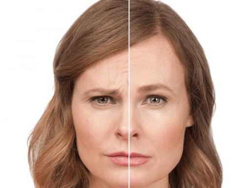 Botox & Facial Fillers – The Fountain of Youth (Without the Knife!)