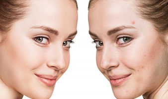 Laser Treatment For Acne and Acne Scarring - Albany & Saratoga, NY