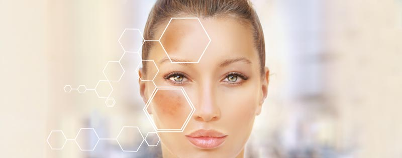 VascuLyse Hyperpigmentation & Skin Tag Laser Therapy - Woman's Face with skin pigment discoloration