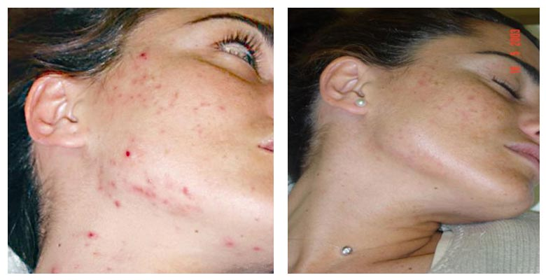 Woman's Face Before and After Acne Laser Treatment