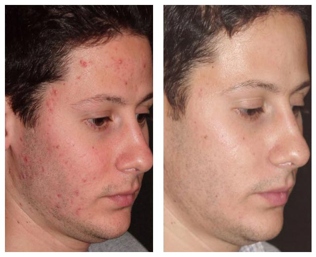 Man's Face Before and After Acne Laser Treatment
