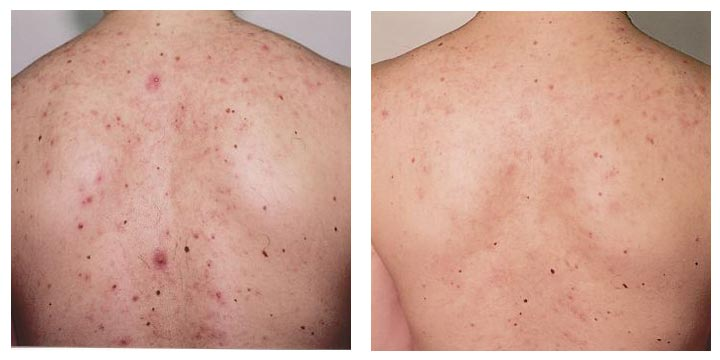 Man's Back Before and After Acne Laser Treatment