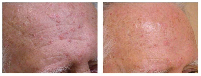 Man's Forehead Before and After Acne Laser Treatment