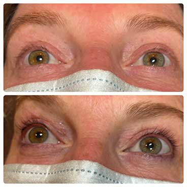Eyelash Tinting - Before and After Of Eyes