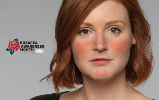 Rosacea Treatment - Girl with rosacea on her face