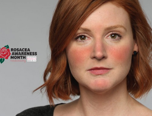 Rosacea Awareness Month